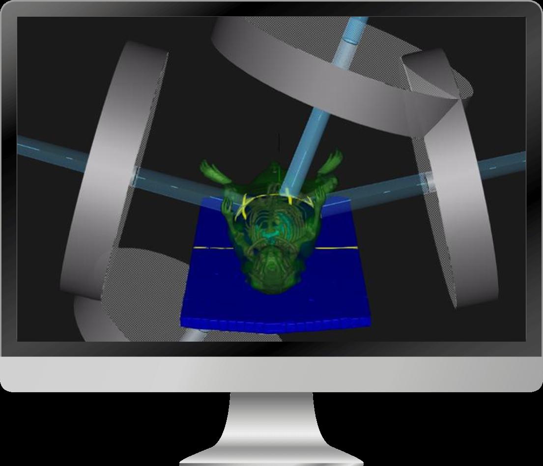 Micro Ray (RayStation)